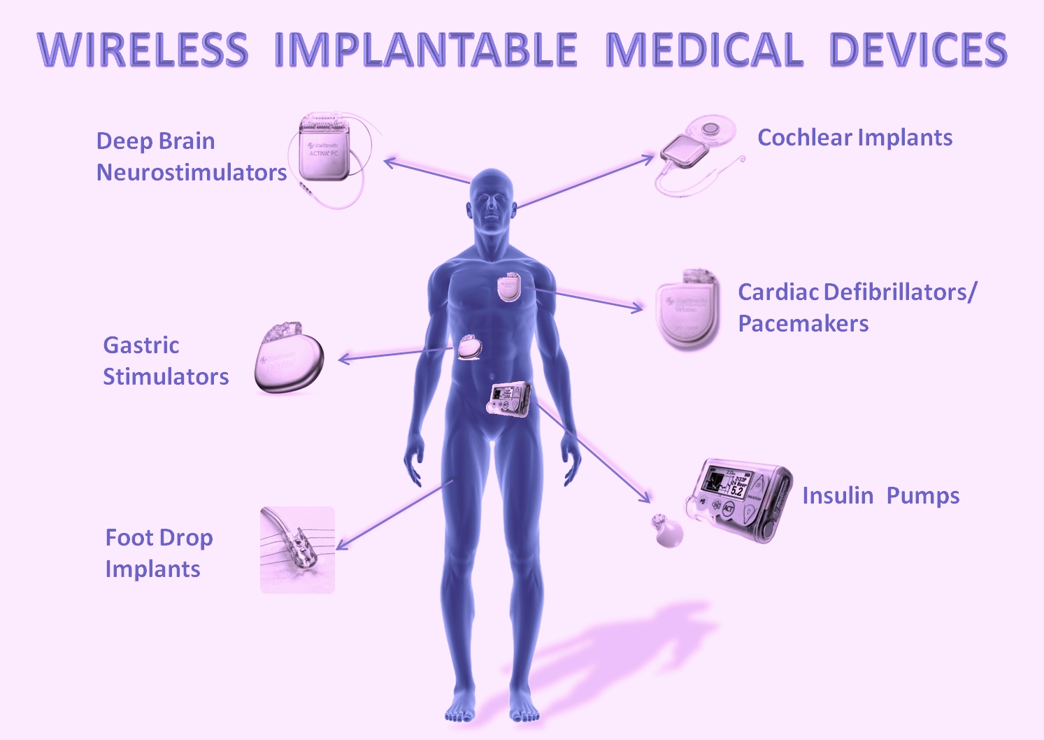 implantable digital device for tissue stimulation essay Device that uses cortical electrical stimulation triggered by seizure detection algorithms that run on-board a standard micro-controller in the device, and is currently under fda investigation for efficacy [10.